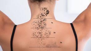 Jak Odstranit Tetování Yag Laserem Estheticoncz