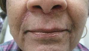 acne like rash around the nose and
