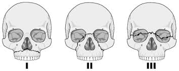 Le Fort Fracture Facial And Mandibular Fractures