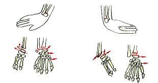 Переломы костей предплечья Перелом лучевой кости в типичном месте