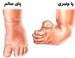 Image result for درمان چنبری پا