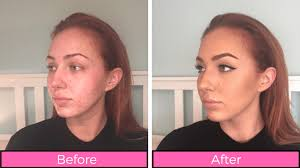 before and after 19 beauty s this makeup artist with psoriasis swears by healthista main