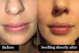 always wanted to know about lip fillers
