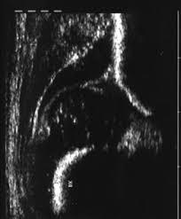 Risultati immagini per anca neonatale ecografia