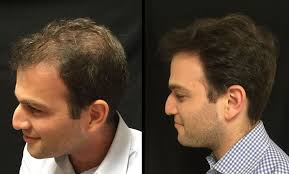 Cure For Male Pattern Baldness Fascinating Male Pattern Baldness Hair Loss PRP Hair Treatment NYC