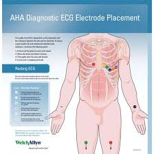 Ekg Lead Placement Chart Welch Allyn Ecg Placement Wall Chart 71300 000