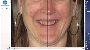 Gps Smile Design Elitesmileacademy Logiciel Dental Gps 3d Smile Design 2016