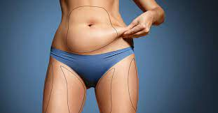 liposuction cost canada starting from