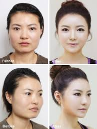 unbelivable plastic surgery done in south korea
