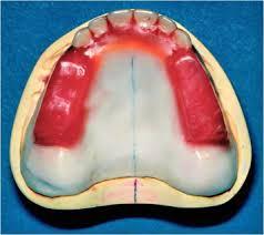 Teeth Setting Prosthetic Dentistry My Dental Technology Notes