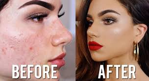 how to cover acne scars with makeup full coverage foundation concealer tutorial