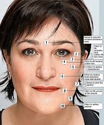 sarah vine had multiple injections in various parts of her face to make her look fresher