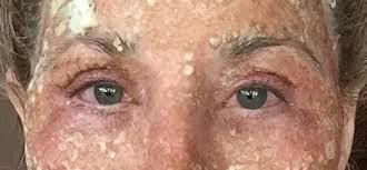 3 days after co2 fractional laser on eyes