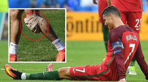 High quality cristiano ronaldo gifts and merchandise. The Condition Cristiano Ronaldo Was Diagnosed With In 2014 That Has No Cure And Gets Worse Over Time Sportbible
