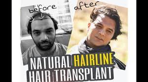 Hair Line Design Transplant Natural Hairline Design Best Hair Transplant In India Dr