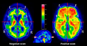 Image result for oraganicgreendoctor amyvid pet scan