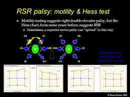 Rso Palsy Motility Hess Test Ppt Video Online Download