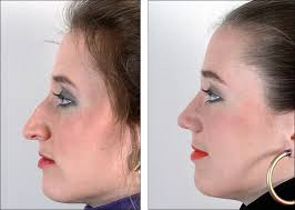 Long Nose Long Nose Before And After Rhinoplasty Liposuction