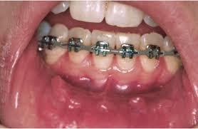 guide to braces cooper orthodontics