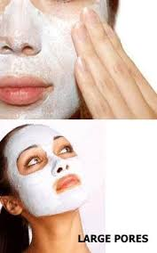 images before and after blackheads