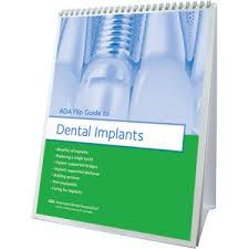 Ada Flip Guide To Dental Implants W483