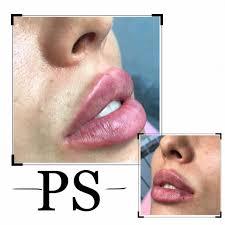 контурная пластика губ увеличение губ в киеве сделать