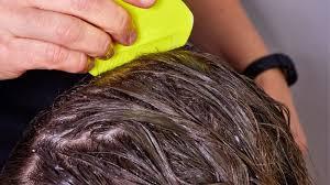 does hair dye kill lice or their eggs