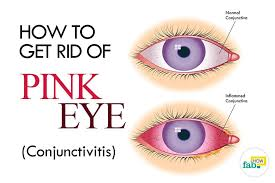 how to get rid of pink eye conjunctivitis without antibiotics fab how