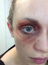 image result for black eye bruise makeup