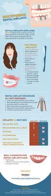 13 best Tooth Bridge images on Pinterest | Medicine, Smile and Anatomy