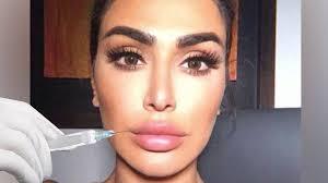 <b>Huda Beauty</b> - My <b>Lip</b> Filler (Horror) Story! | Facebook