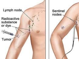 lymph node surgery in melanoma