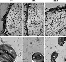 Tem Microscope Anatomy Of The Endosperm By Light And Tem Microscopy A In The Wt