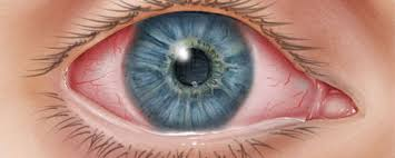 Doctors Note For Pink Eye Conjunctivitis Home Pink Eye Cdc