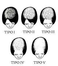 Female Pattern Hair Loss Amazing Female Hair Loss The American Hair Loss Council