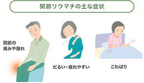 関節 リウマチ 症状
