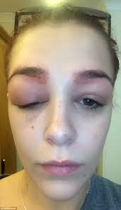 Teen had severe allergic reaction to busy eyebrow treatment   Daily ...
