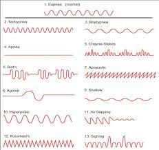 Abnormal Breathing Patterns New Abnormal Breathing Patterns Medcaretips