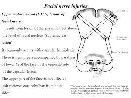 nerve injuries upper motor neuron umn lesion of nerve