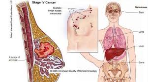 cara mengobati kanker payudara