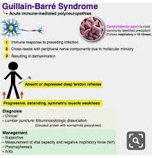 Guillain barre syndrome ...