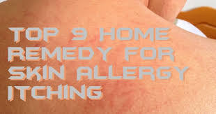 Top 9 Home Remedy for Skin Allergy Itching