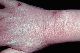 Differential diagnoses: Hand rashes   GPonline