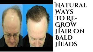 Natural Ways To Re Grow Hair On Bald Heads Men S Haircare Tips