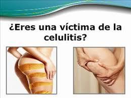 eliminar la celullitis