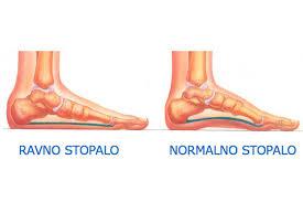 Rezultat slika za ravno stopalo kod bebe