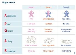 Newborn Assessment Apgar Score Assessment Of Newborn Vital