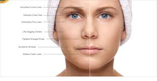 how do injectable cosmetic fillers work