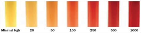 Hemolysis Index Chart Color Chart For Detection Of Hemolysis Number Indicates