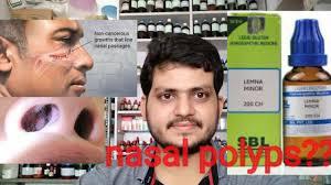 Nasal polyps!Homeopathic medicine for nasal polyps?? explain? - YouTube